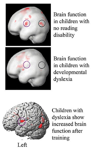 How Science Is Rewiring Dyslexic Brain >> Remediation Training Improves Reading Ability Of Dyslexic Children