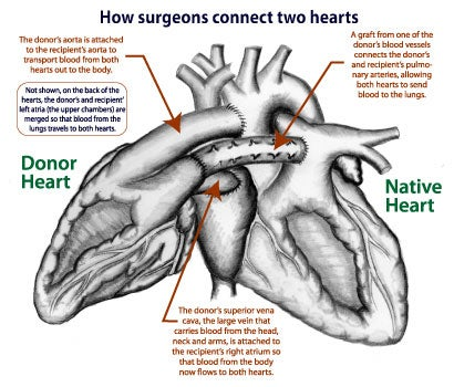 Two hearts are better than one for toddler who undergoes historic surgeons last month performed a heterotopic or piggyback heart transplant that involves connecting a donors heart to the patients heart as shown in the ccuart Images
