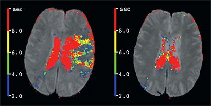 Mris Could Save Stroke Victims From Brain Damage
