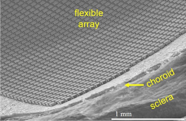A close-up view of the flexible retinal implant made of silicon. It has tiny bridges that allow it to fold over the shape of the eye and provide a high-resolution image.