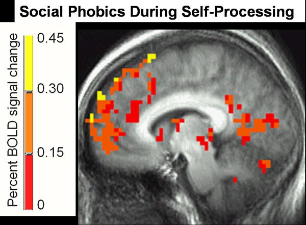 Social Phobics during Self-Processing