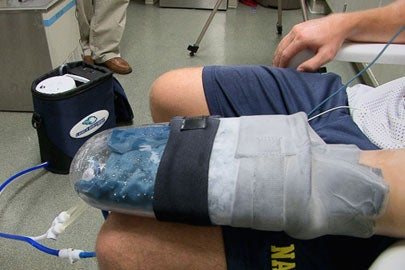 Stanford researchers' cooling glove 'better than steroids' – and helps solve physiological mystery, too