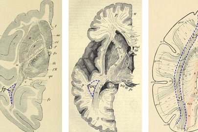 images of brain sections from old medical textbooks / Courtesy of PNAS