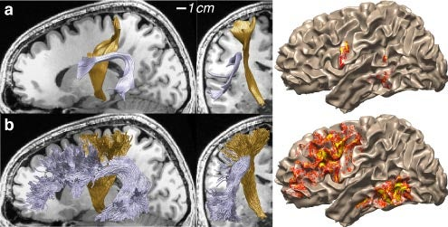 Images of the brain with different regions highlighted