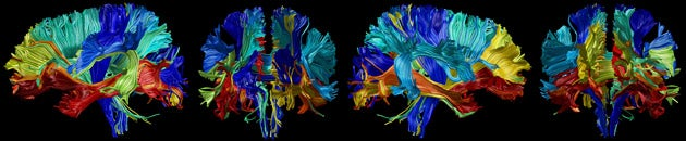 Illustration of a brain with different-colored regions