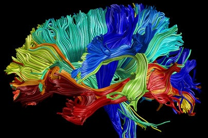 Illustration of a brain with different-colored regions /Photo: Wandell Lab